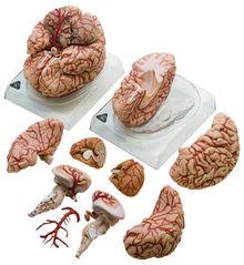 BS 23 Gehirn mit Arterien