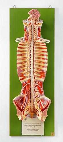 BS 31 Rückenmark mit Wirbelkanal