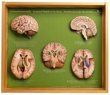 BS 45 5 Gehirnschnittmodelle