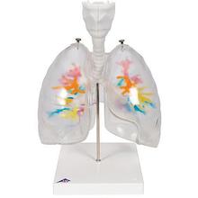 CT-Bronchialbaum mit Kehlkopf und Lungenflügeln