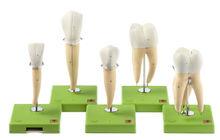 ES 11 Fünf Zahnmodelle