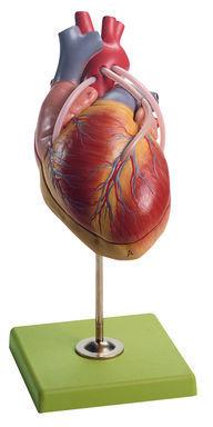 HS 15/1 Herzmodell mit Bypassgefäßen (aortakoronarer Venenbypass)