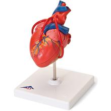 Klassik-Herz mit Bypass, 2-teilig