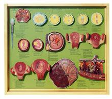 MS 15 Befruchtung + Entwicklg. des menschl. Eies bis zum 3. Monat