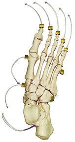 QS 24-N Fuss-Skelett auf Nylon