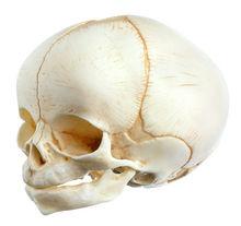 QS 3/E Künstlicher Schädel eines Neugeborenen