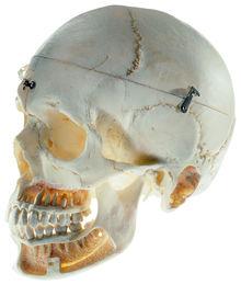 QS 8/10 Künstlicher Schädel eines Erwachsenen