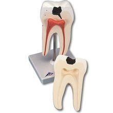 Zähne, Zunge, Kehlkopf